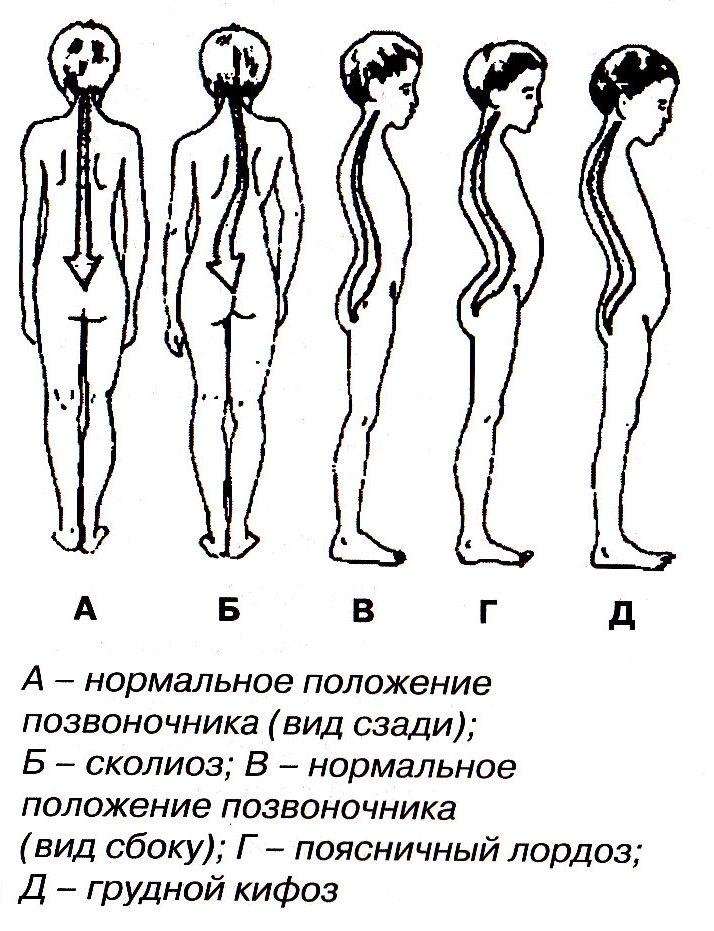 Лечение сколиоза 2 степени s образный