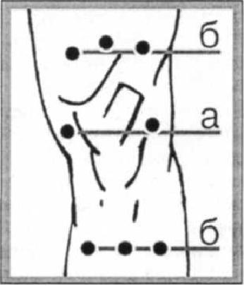 При лечении коленного сустава